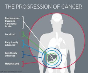 Progression of Cancer